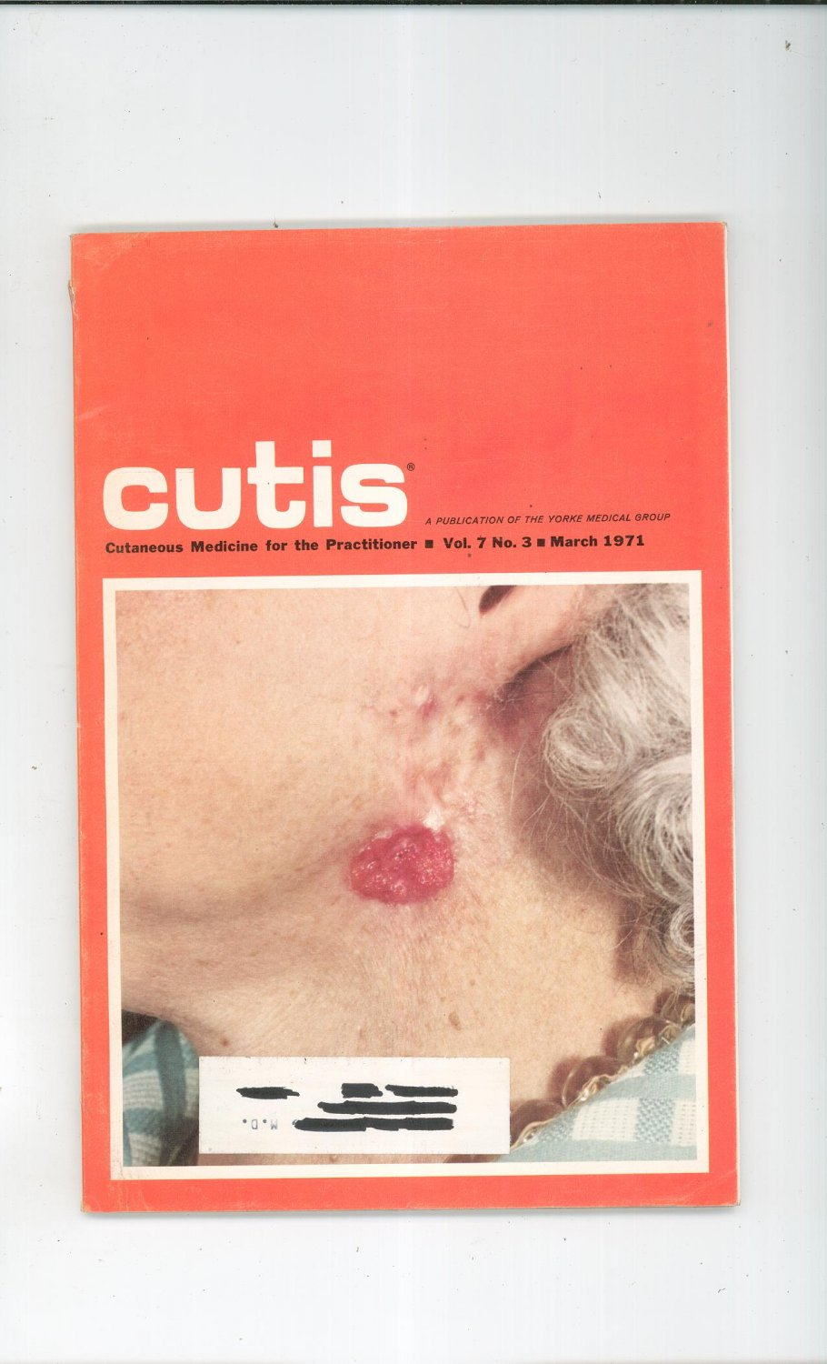 March 1971 Cutis Cutaneous Medicine For The Practitioner Magazine Vintage