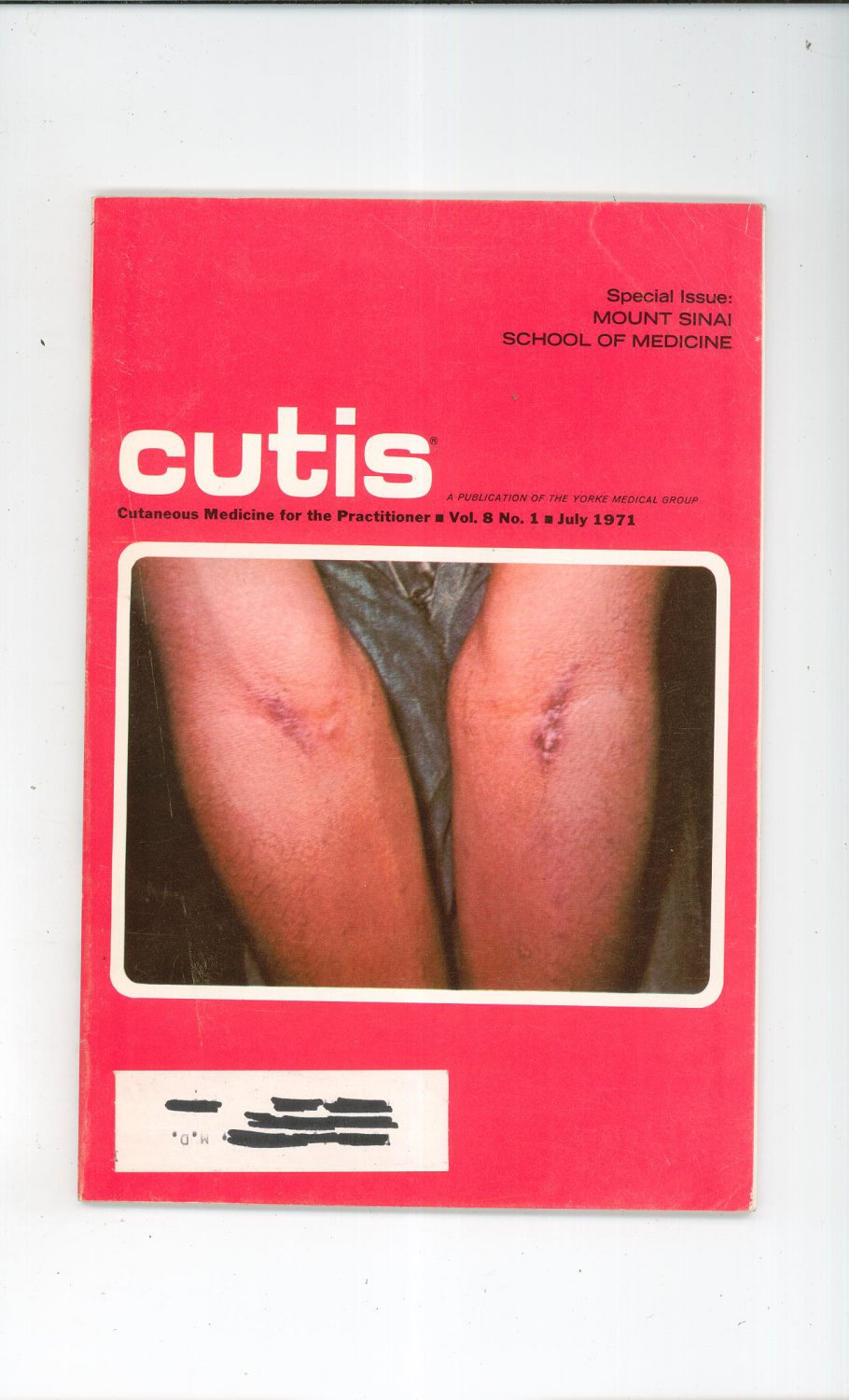July 1971 Cutis Cutaneous Medicine For The Practitioner Magazine Vintage Mount Sinai School Medicine