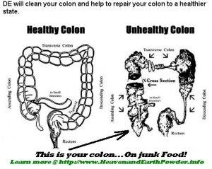 "Diatomaceous Earth (DEtox) ""Health Powder"" for Humans"
