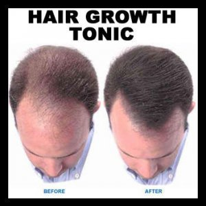 HAIR GROWTH TONIC & SHAMPOO TREATMENT PACK