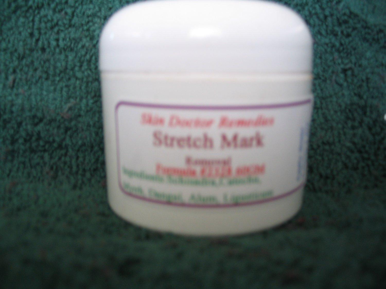 Stretch Mark Removal #2328