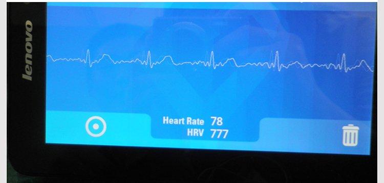 BMD101 Micro Wireless ECG Electrocardio Sensor Module w/Bluetooth Transmission