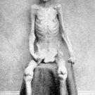 New 5x7 Civil War Photo: Escaped Federal Prisoner of War