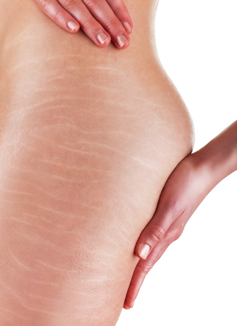 Worlds Greatest Scar & Stretch Mark Reducer / Remover
