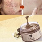 Facial Mask Acne Scars Freckle Remover Face Care Treatment Blackhead Cleansing