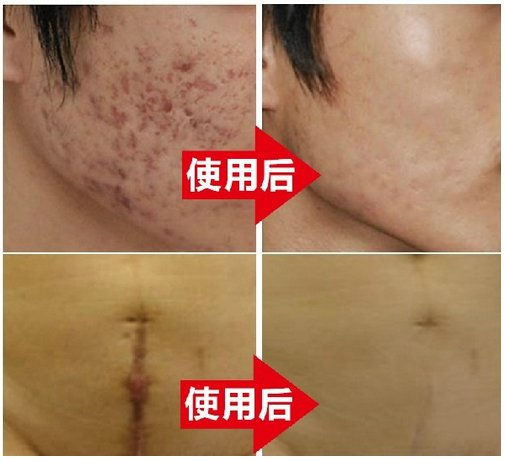 Nuobisong Removal Acne Scar Stretch Marks Cream Treatment Face Care Whitening