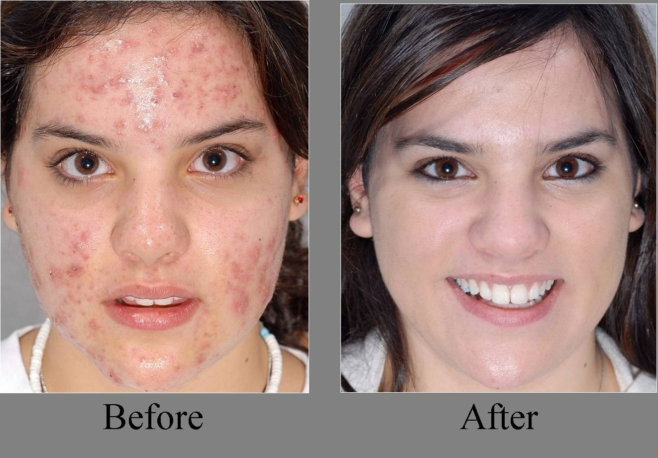 ACNEPRIL - Best Acne Pills - Acne Pills - Rid Acne with the New Acne Treatment