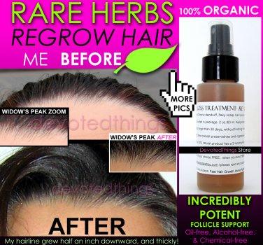 BEST ORGANIC Hair Regrowth Treatment Hair Loss Thinning Dandruff All In 1