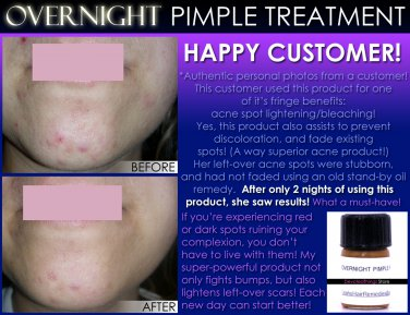 Fast Overnight Pimple Treatment for Zits, Boils, and Cysts All in 1 Remedy
