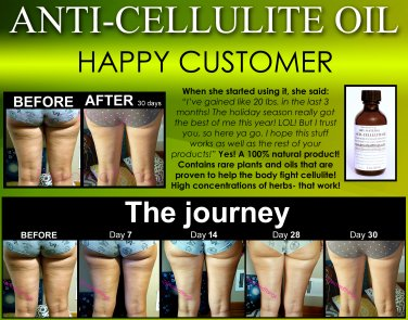 All Natural Anti Cellulite Oil Treatment That Works For Thighs with Caffeine and Essential Oils