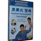 Periarthritis Humeroscapularis Facial Paralysis (DVD)-Chinese Medicine Massage