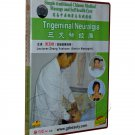 Trigeminal Neuralgia -Simple TCM massage and self health care  (DVD)