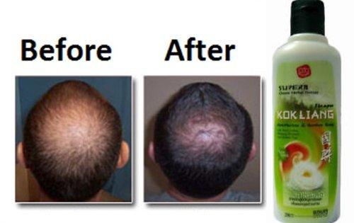 KOKLIANG KOK LIANG Anti-hair loss dandruff herbal scalp soothes shampoo 200cc+Free Shipping World Wi