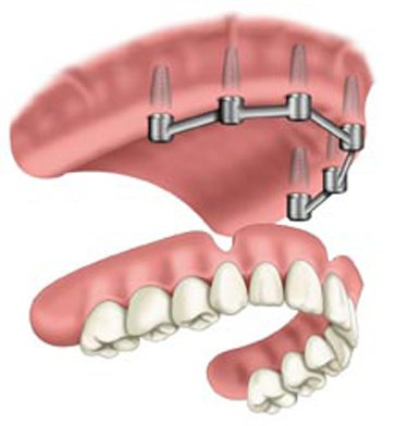Removable Prosthetic Implant Overdentures