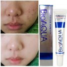 Effective Face Acne Spots Scar Blemish Skin Care Removal Cream Marks Treatment