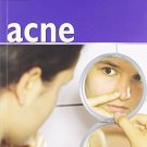 50 Things That Cause Acne [Aug 01, 2012] Hasanali, Inara