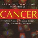 An Illustrated Guide to the Treatment of Cancer: Symptoms, Causes, Diagnosis,