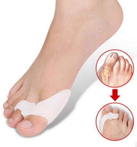 Pair Of Silicone Hallux Valgus Orthotics Toe Separators