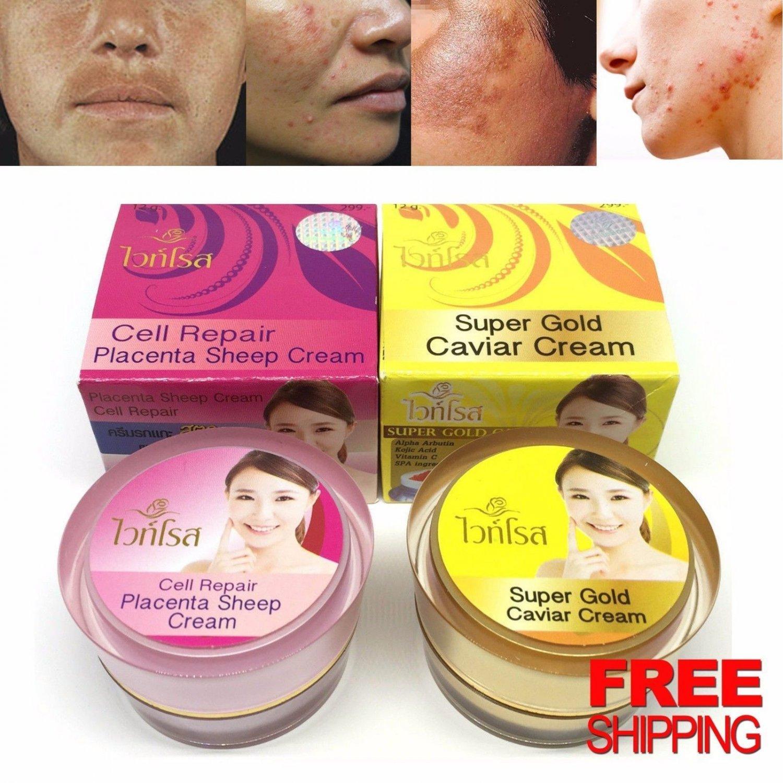 Set White Rose Super Gold Caviar and Placenta Sheep Brightening Cream Melasmar Skin break out