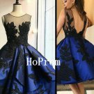 Backless Lace Homecoming Dress,Knee Length Homecoming Dresses,Prom Dress