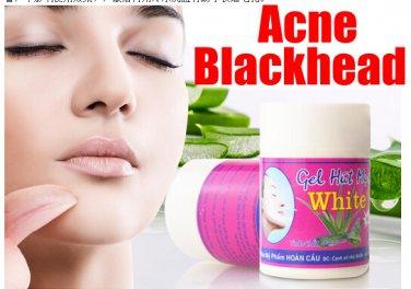Aloe Acne Mask Thailand Blackhead Shrink Pore Whitening Face Mask 1 Box