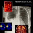 Squire's Fundamentals of Radiology by Robert A. Novelline (2004, Hardcover,...