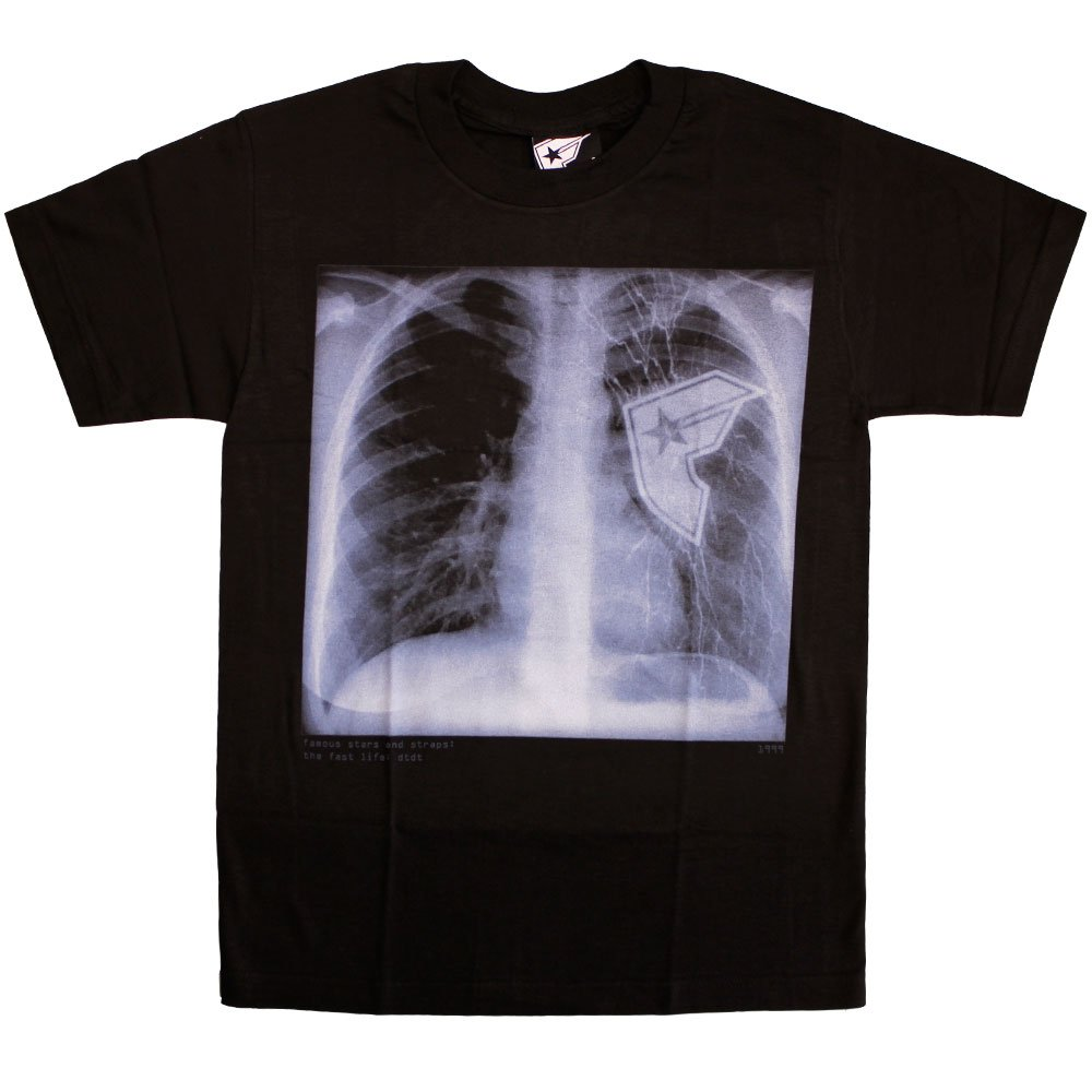 Famous Stars and Straps Chest Xray T-shirt Black