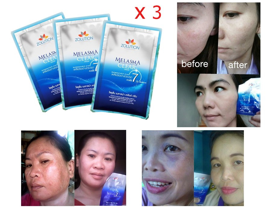Zolution Melasma Clear Cream For Melasma, Dark Spot & Skin Whitening 30g.
