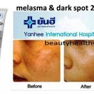 Melasma & dark spot Anti Freckles Cream by Yanhee Hospita