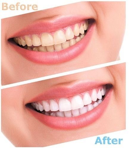 Advanced Teeth Whitening Strips (4 Strips) 2 Upper and 2 Lower~Hydrogen Peroxide