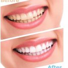Advanced Teeth Whitening Strips (4 Strips) 2 Upper and 2 Lower~Hydrogen Peroxide