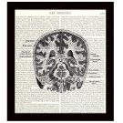 Dictionary Art Print 8 x 10 Hemispheres of the Human Brain Victorian Diagram