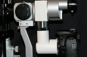 Slit lamp digital upgrade package