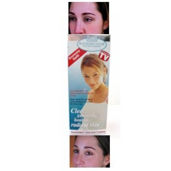 NEW! Wholesale IGIA Blemish Acne Skin Treatment