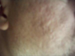 acne gone forever