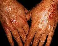 MAKOFI KIT- 5 BUTTER HAND SOFTENING KIT® AND EXFOLIATING HAND GEL shea butter, hands, nails