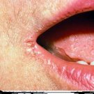 Cure Angular Cheilitis Naturally