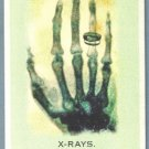 2010 Topps Allen & Ginter Baseball X-Rays (Invention) #185