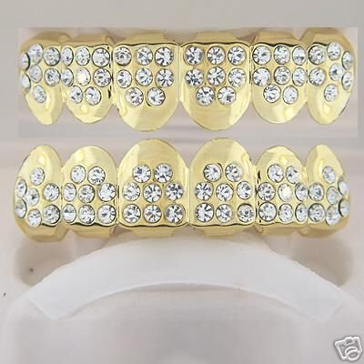 Forty-eight points of ice gold plated playa top and bottom grillz set