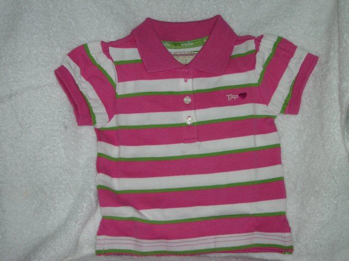 Puff sleeve stripe/multi stri/18-24 M