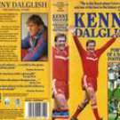"Liverpool: Kenny Dalglish """"Portrait Of A Legend"""""