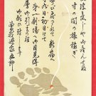 1935 Japanese Advertising Art Postcard SOGANOYA GORO Comedian Comedy Play Moxibustion Foot #EOA62
