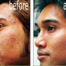 MICRODERMABRASION CREAM ACNE SCAR REMOVAL SOLUTION