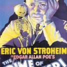 The Crime Of Dr. Crespi DVD (1935) Erich Von Stroheim Rare Horror