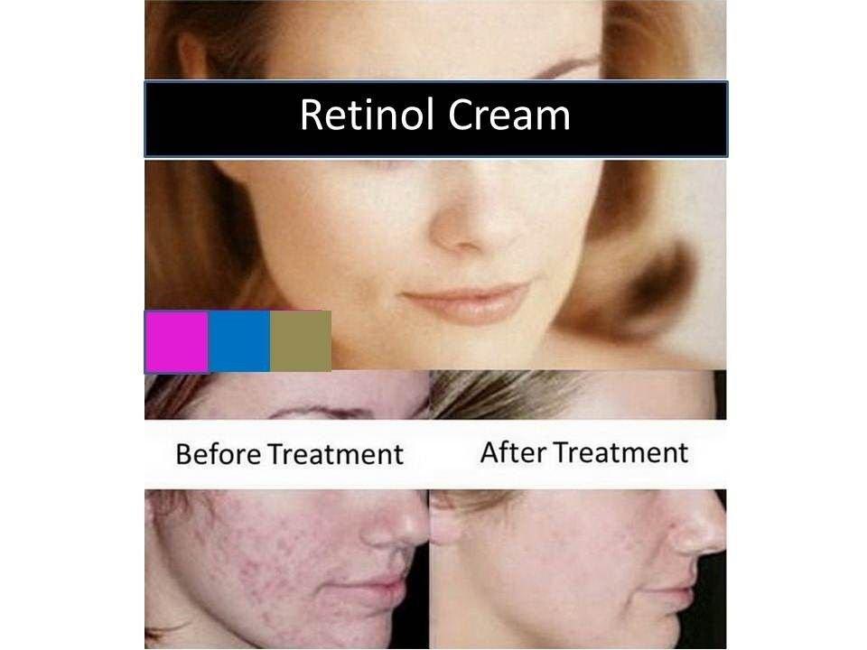 RETINOL VITAMIN A CREAM Retin ACNE spot Wrinkle