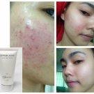 Tester 3 ml - Serum Acne Clear treatment acne - Acne Skincare