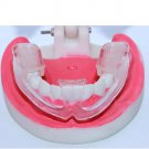 Bruxism Mouth Teeth Dental Tooth Night Sleeping Grinding Guard with Case lkk