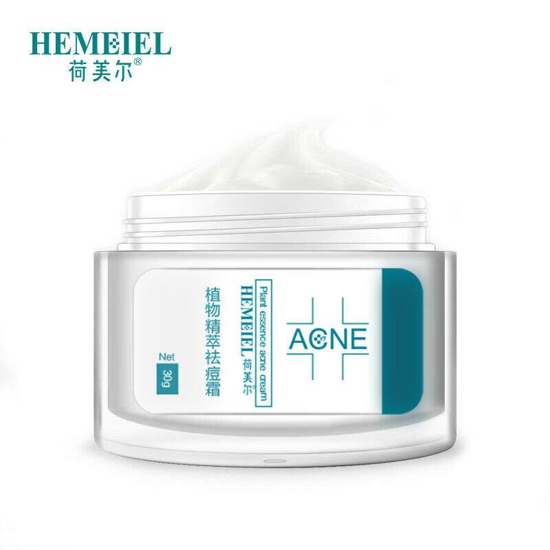 Acne Treatment Face Cream Anti Acne Scar Removal Pimple Blackhead 30g