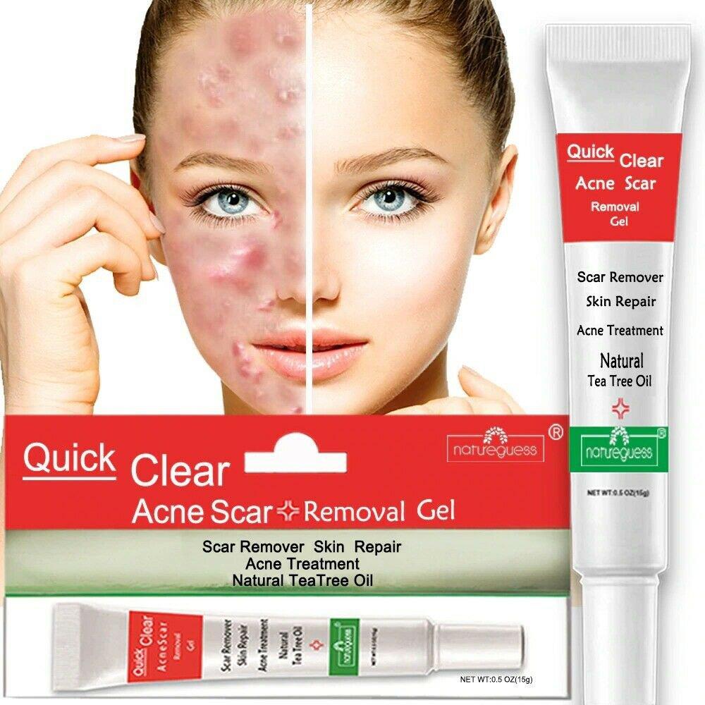 Acne Treatment Face Cream for Scar Repair Blackhead Removal & Oil Control