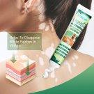 2 x Vitiligo Antibacterial Cream White Spot Vitiligo Treament Cream 20g each